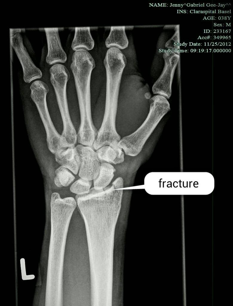 X-Ray of my left wrist